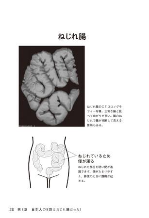 (本書p22ー23 「正常な腸」と「ねじれ腸」をCTコロノグラフィー画像で比較)