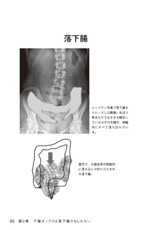 (本書p65 「落下腸」のコロノグラフィー画像)